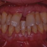 Caso iniziale grave parodontite