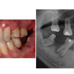 Situazione iniziale; presenza di carie, parodontite e numerosi elementi ormai compromessi. L'  esame rx accanto conferma la necessità di un trattamento complesso.