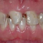 Caso clinico con evidente carie dei denti del gruppo frontale.