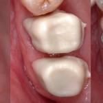 Alcune fasi protesiche: preparazione pilastri; prova corone in zirconia; verifica della precisione.