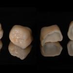 Le corone così come si presentano prima della cementazione, notate le caratteristiche e la cura dell'anatomia dei denti.