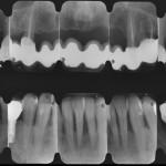 Esame radiografico dove si notano impianti inseriti e il recupero degli elementi superiori.