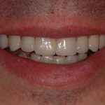 Sorriso del paziente