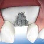 Necessaria rigenerazione ossea impianto