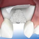 Rigenerazione ossea inserimento impianto