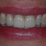 06-Foto Finali, la riabilitazione risponde alle esigenze sia estetiche che funzionali.