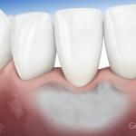 Esito ottimale della rigenerazione parodontite